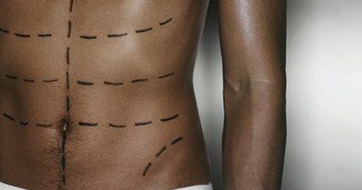 Anatomía de los músculos abdominales